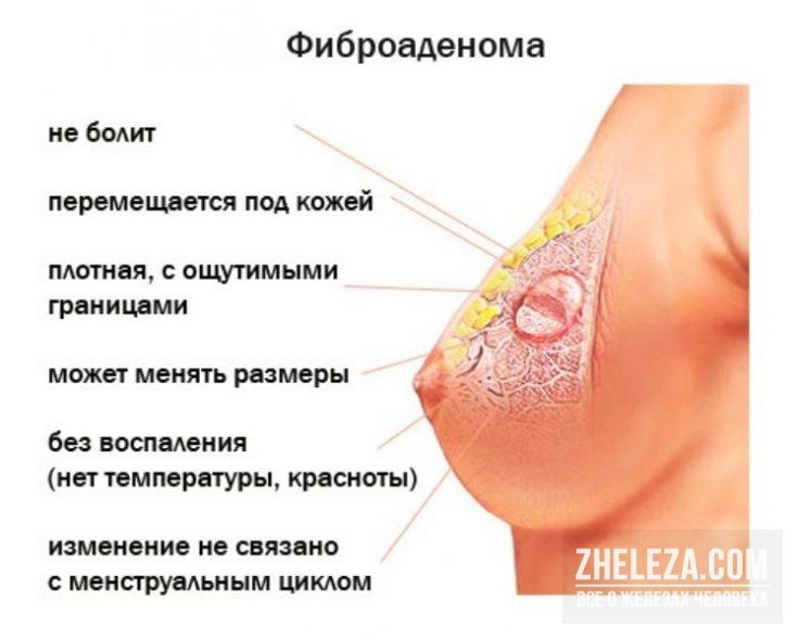 Как лечат мастопатию и опасна ли она для здоровья