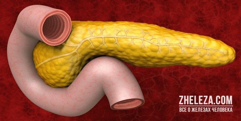 Билиарный панкреатит