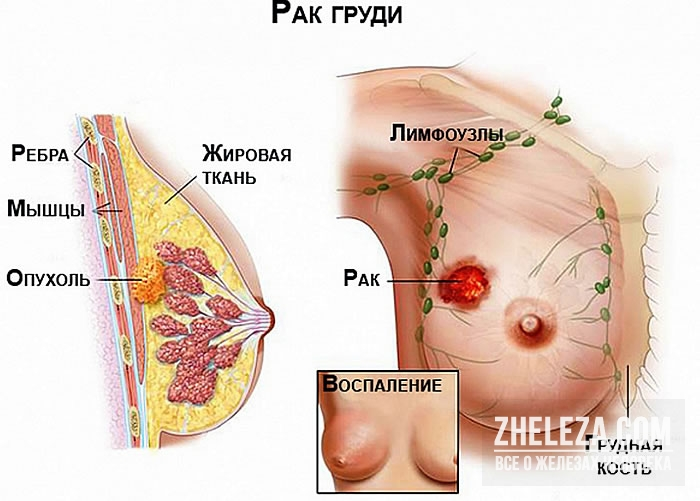 Что нужно знать каждой женщине про рак груди