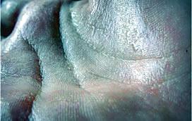 Лечение заболеваний потовых желез