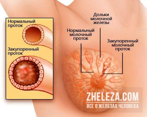 Как при диффузной и узловой мастопатии болит грудь? Как ее устранить?