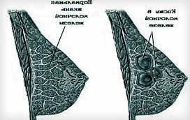 Мастопатия киста и опухоли - заболевания молочной железы