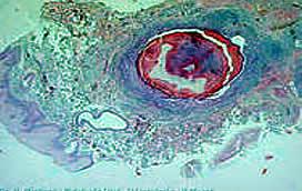 Опухоли слюнных желез