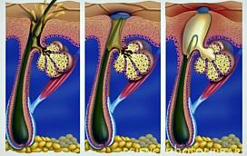Причины и симптомы заболеваний сальных желез