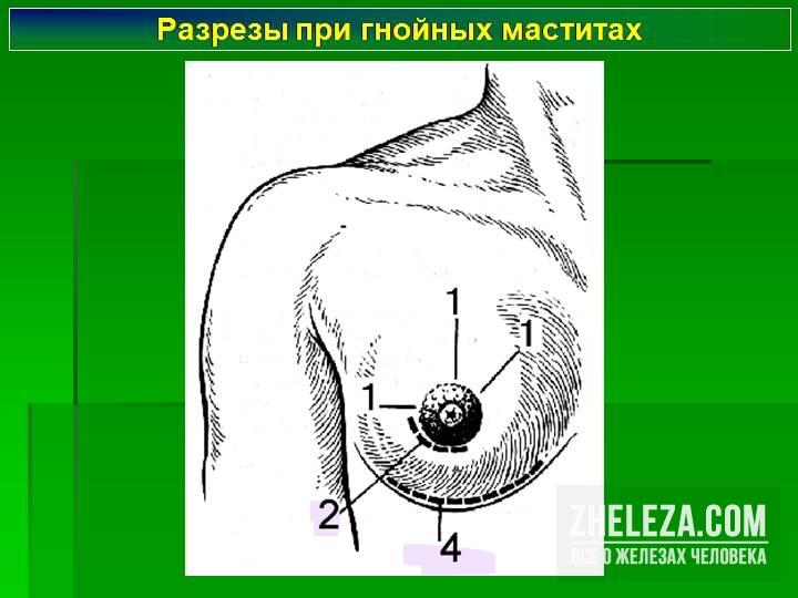 Упражнения после пластики груди