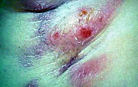 Заболевания потовых желез